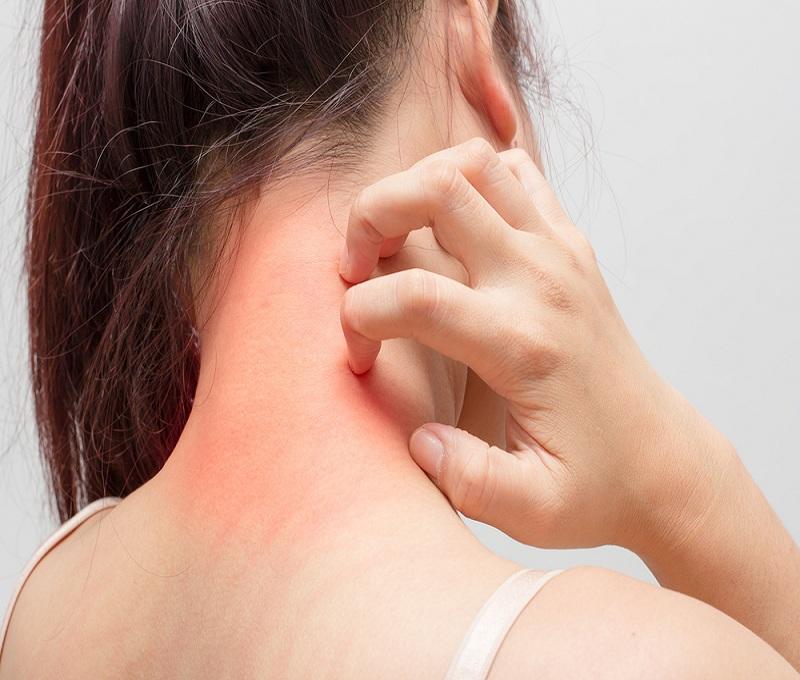 trastornos permanentes de la piel